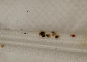 Bed Bugs on Zipper, Photo (cc) Exit Zero Photography