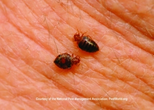 Adult Bed Bugs on Skin (cc) Medhill DC NPMA